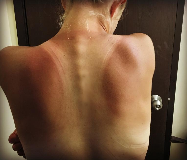sunburn 16